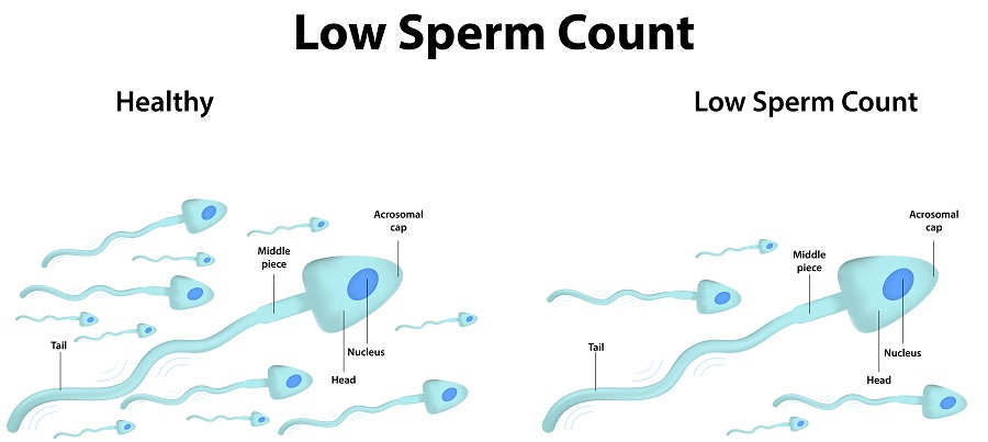 mens low sperm count